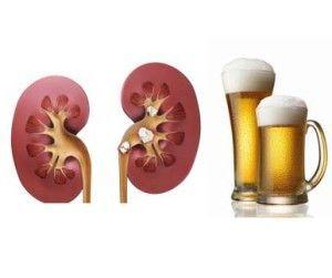 Як пиво впливає на нирки?